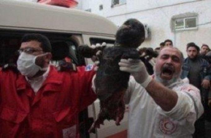 Bombed child